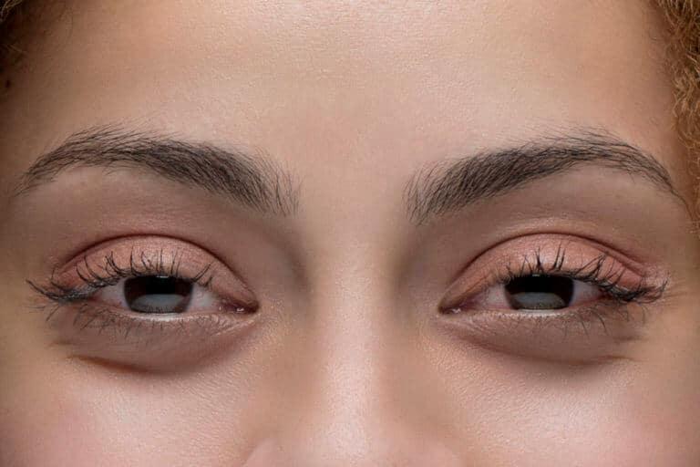 olhos vermelhos efeitos da maconha Weedmaps 1